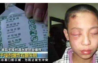 小孩右眼损伤双目失明。干燥剂真有那么大杀伤力